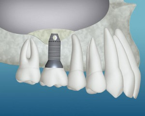 Trends in Implant Dentistry