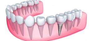 identify that you need prosthetic teeth