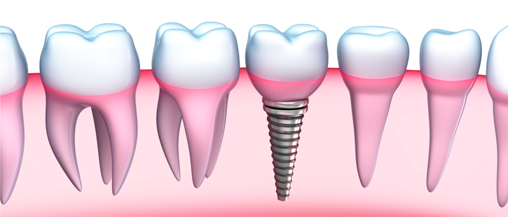 advancements-of-dental-implants
