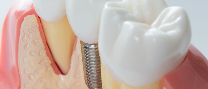after-your-dental-implant-surgery