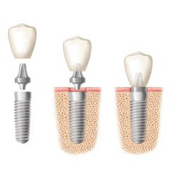 Dental Implant Cost Sydney