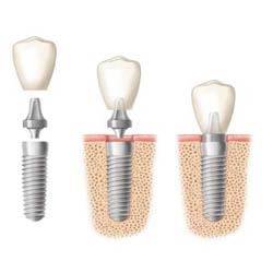 Dental Implant Cost Sydney