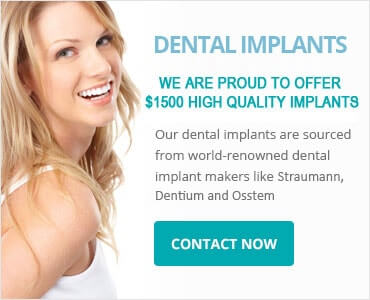 Tooth Implant Sydney - Make an Appointment