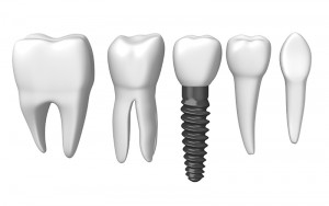 4 Things You Need to Know About all on 4 Implants