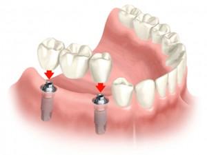 Dental Bridges versus Dental Implants