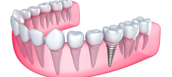 Dental Implants Sydney