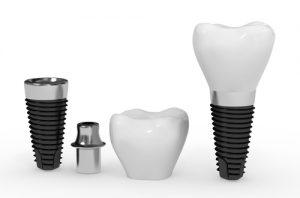 Dental Implanting Procedure