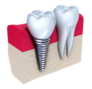 dental-implants-safer
