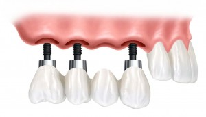 history of Dental Implants