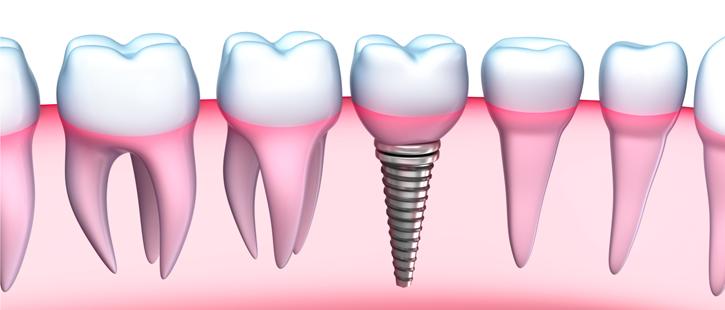 advancements-of-dental-implants