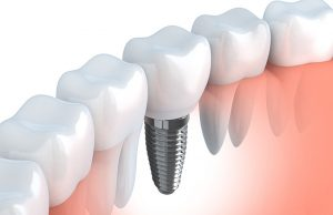 dental implants in Sydney