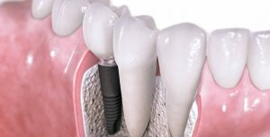 tooth implants Sydney