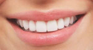 Dental Implants Cost - 7 Factors that Influence it and its Benefits