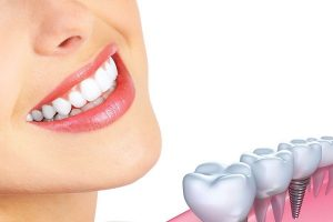 Dental Implants Could Help Enhance Your Smile