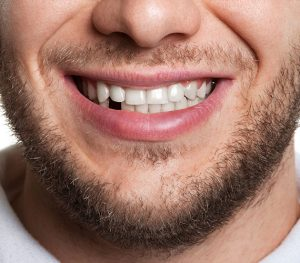 Replace a Missing Tooth