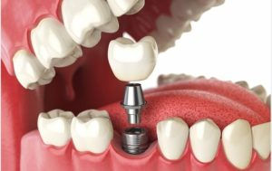 Teeth Implant impacts