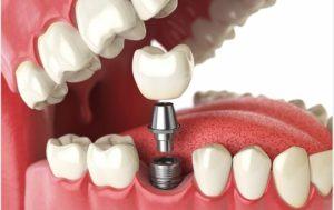 Teeth Implant impacts
