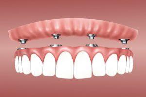 Can Dental Implants Last Forever?