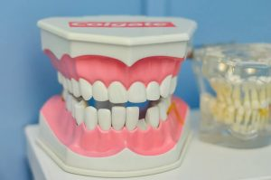 Why is it Crucial to replace a Missing Tooth?