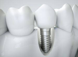 Why Choose Dental Implants Over Dentures?