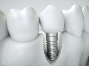 Why Choose Dental Implants Over Dentures?