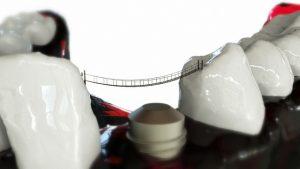 Digital Dental Implants – Know The Benefits!