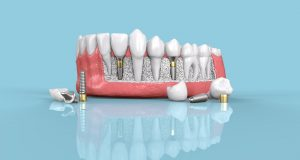 All-On-4 Dental Implants – A Permanent Solution for Multiple Missing Teeth