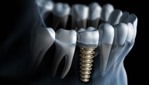 Are Dental Implants A Permanent Solution For Tooth Loss?