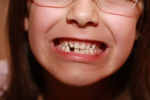 How Can Missing Teeth Affect Your Oral Health?