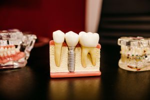 Dental Implants – Common Questions Answered!