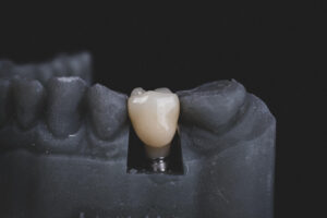 Considering An Implant To Replace Your Missing Tooth?